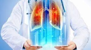 Akciğer Kanseri Teşhisinde Elektronik Burun Teknikleri