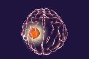Akış Sitometrisi ile Birleştirilmiş Mikro Akışkan Kanser Tedavisi