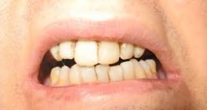 Dentoalveolar Cerrahide (Diş Cerrahisi) Krestal Anestezi