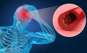 Hipoksinin Belirtileri ve Önemi